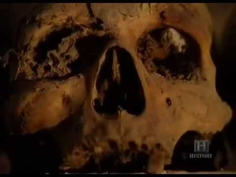 The Black Death - Worst plague in history