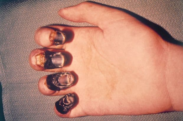 a man's hand covered by bubonic plague black death