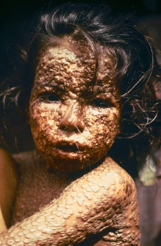 girl with smallpox